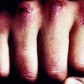 Ссора двух мужчин переросла в жестокую массовую драку на остановке в Уральске
